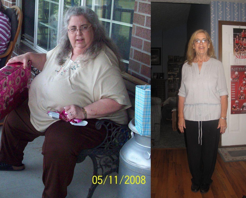Опыт Похудения После 50 Лет. Эффективные методики похудения после 50 и 55 лет
